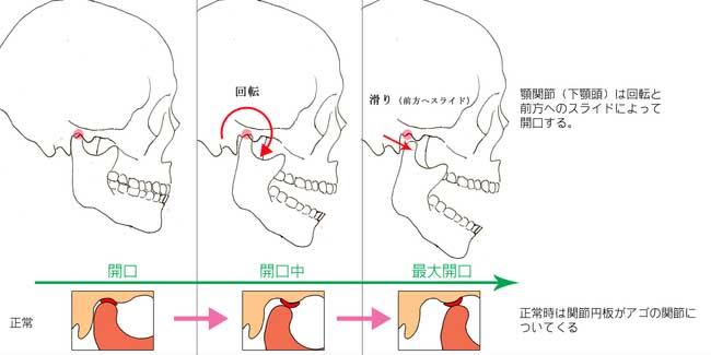 顎関節説明s音の原因