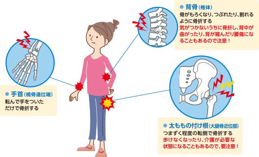 骨折の部位