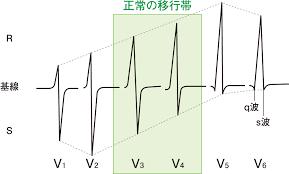 心電図 12 貼り 方 誘導
