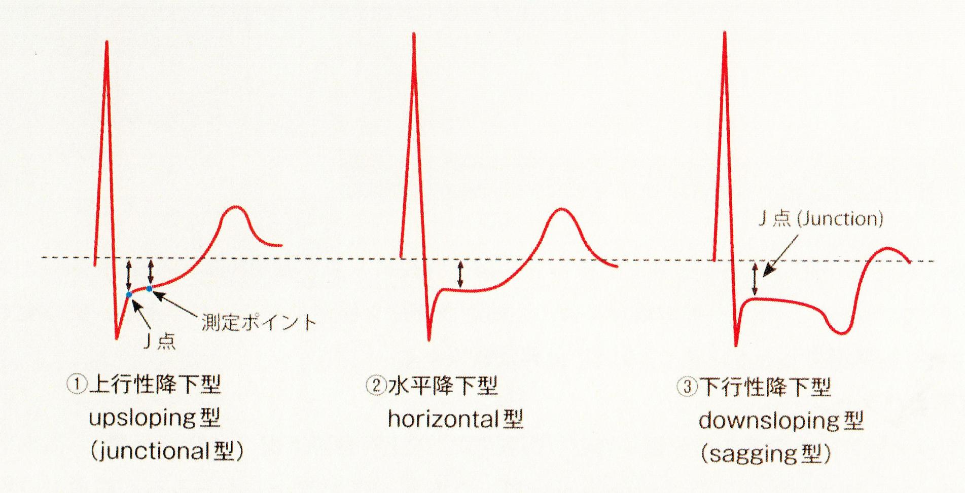 心電図 波形 種類