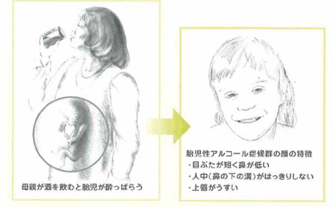 02 胎児アルコール