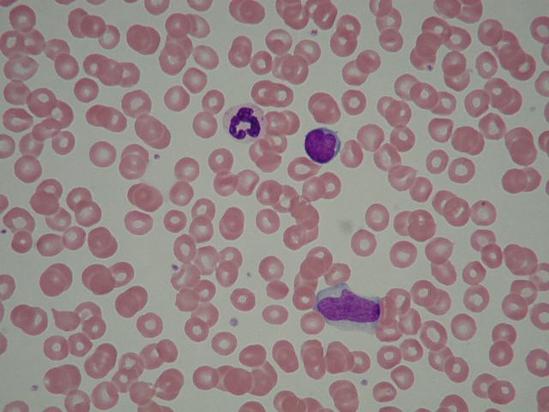 血液の顕微鏡像