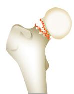 大腿骨頸部骨折