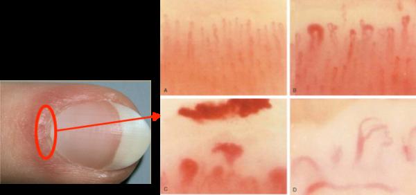 Nail-fold Capillaryの所見