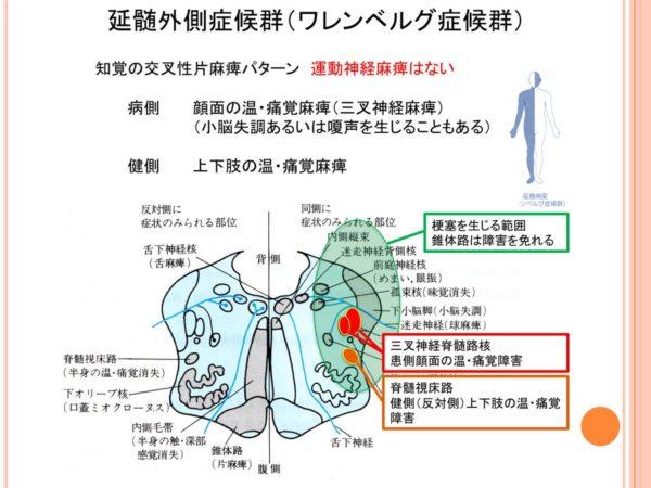 ワレンベルグ症候群