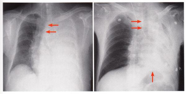 無気肺か胸水