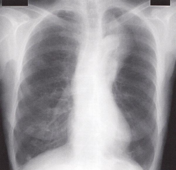 左上葉無気肺