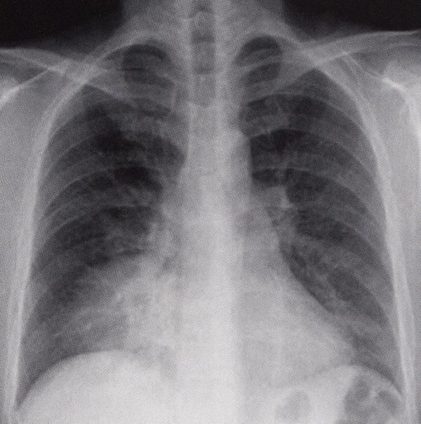 右下肺野肺炎